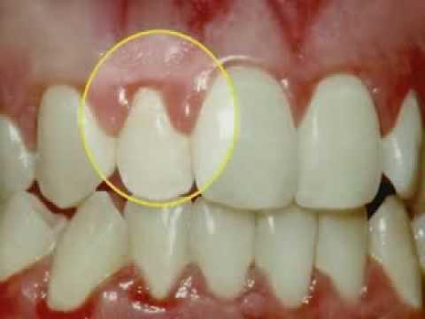 gum disease dentists in brisbane