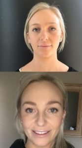 cometic injectables before and after