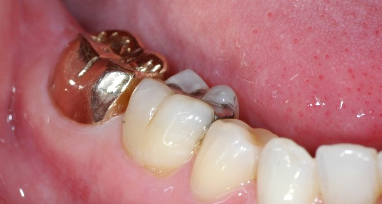 Gold filling on molar tooth
