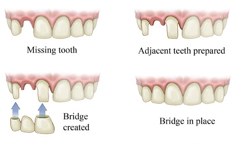 graphic of dental bridge