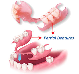 dentures dentist in brisbane