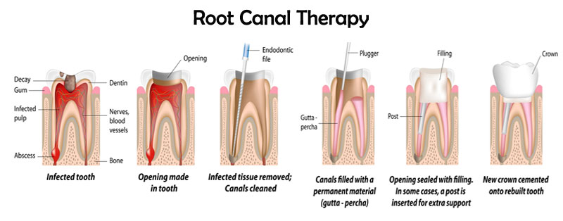 graphic of root canal