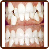 crooked teeth before and after- straight