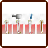 graphic of tooth dental tools