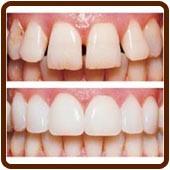 veneers dentist brisbane