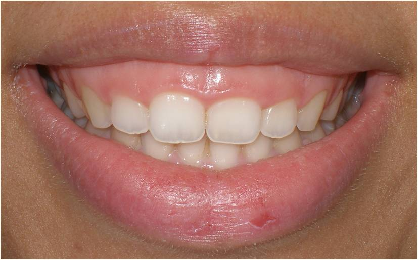 gummy smile dentist brisbane