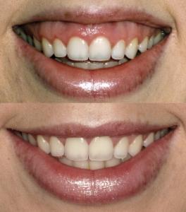 muscle relaxants dentists brisbane