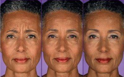 dental facial aesthetics in brisbane