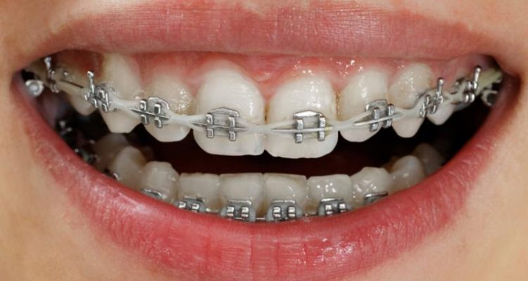 fastbraces vs invisalign