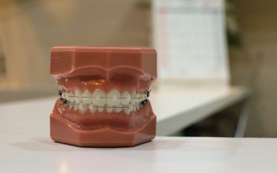 tooth model with braces on a bench