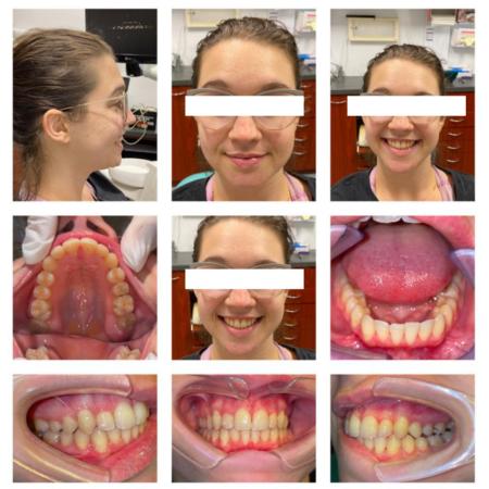 South Brisbane Invisalign greenslopes dental